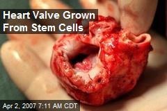 Heart Valve Grown From Stem Cells