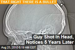 Guy Shot in Head, Notices 5 Years Later
